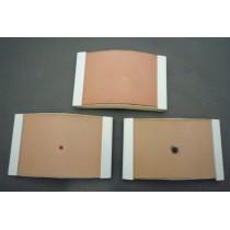 Skin Pad, Mole + Lipoma + Melanoma