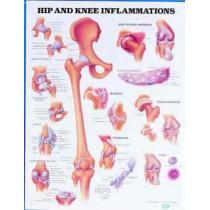 Hip & Knee Inflammation Chart.