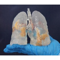 3D Printed COVID-19 Lungs Mini Size