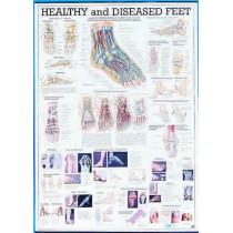 Healthy & Diseased Feet Chart
