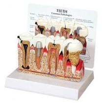 Teeth Budget Model