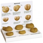 Prostate-set of 6 Budget Model