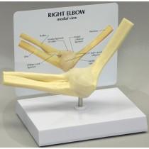 Basic Elbow - Budget Model