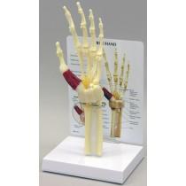 Hand/Wrist - Carpal Tunnel Syndrome - Budget Model