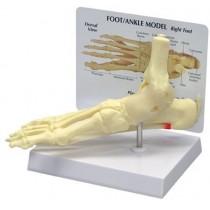 Ankle/Foot - Plantar Fasciitis - Budget Model