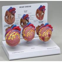 3-Mini Heart Set - Budget Model