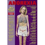 Anorexia Chart