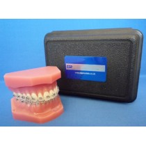 Orthodontic Maxilla & Mandible with Fixed Braces