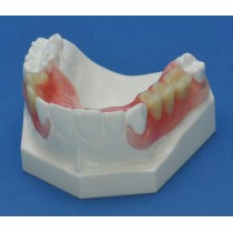 Crown & Bridge Combination Maxilla