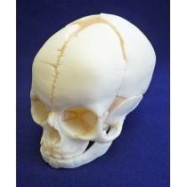Foetal Skull
