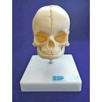 Foetal Skull on Stand