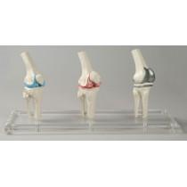 Knee Implant Model, Set of 3 Joints