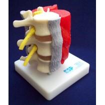 Lumbar Vertebrae With Muscles