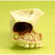 Teeth Eruption