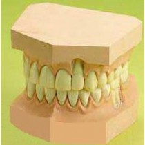 Upper And Lower Teeth Set Model