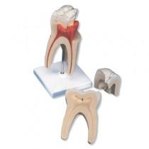 Upper Molar Tooth 3 Part