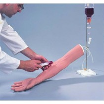 Replacement Veins For Injection Arm with Hand