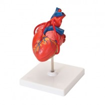 Heart With Bypass, 2 Parts
