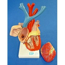 Heart Enlarged, Flexible Model